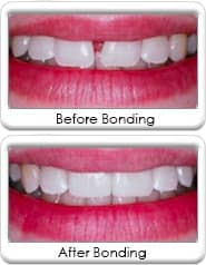 Dental bonding and veneering - before and after