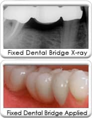 Avondale Dentist - Dental Bridge Single Tooth
