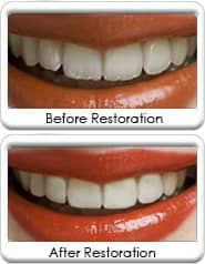 Cosmetic Dental Recontouring - before and after