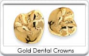 Gold Dental Crown Restorations