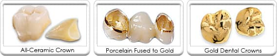 Types of Dental Crown Restorations