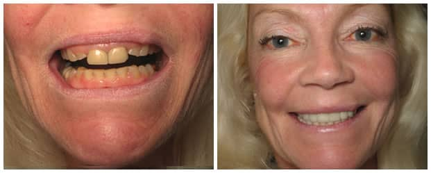 Avondale Dentist - Charles Clausen DDS - Gentle Family Dentistry & Orthodontics - Smile Makeover Image