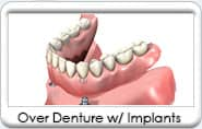 Over Denture from Gentle Family Dentistry & Dental Implants