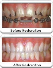 Full mouth reconstruction, restorations with Dental crowns, bridgework, and porcelain dental veneers