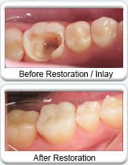 Avondale Dentist - dental restoration with Inlay
