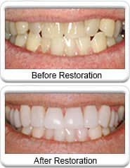 Lumineer - Emprethin ceramic porcelain veneers, before & after restoration
