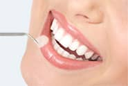 Lumineer - Emprethin ceramic porcelain veneers - ultra-thin translucent