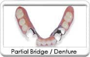 Avondale Dentist - Removable Dental Bridge