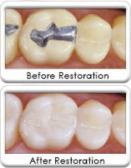 Tooth-colored dental restoration - before and after
