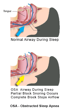 Normal and Obstructed Sleep Apnea blocked Airways