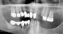 Avondale Dentist - Dental X-ray