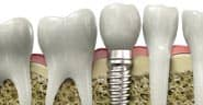 A diagram of dental implants in Goodyear, AZ