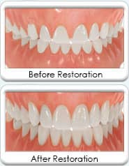 Illustration of Gum reduction surgery in Avondale, AZ