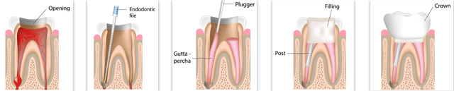 Root Canal Illustrated Process